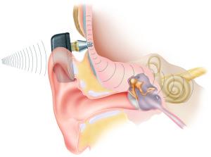 Cochlear Baha Implant 09/16/2007